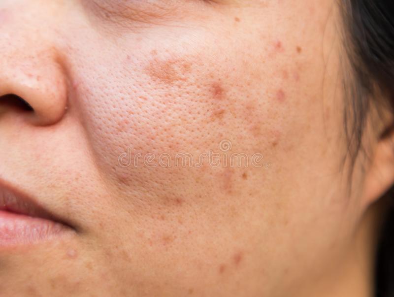 Theraskin Paket Acne Terbukti Ampuh Menghilangkan Jerawat